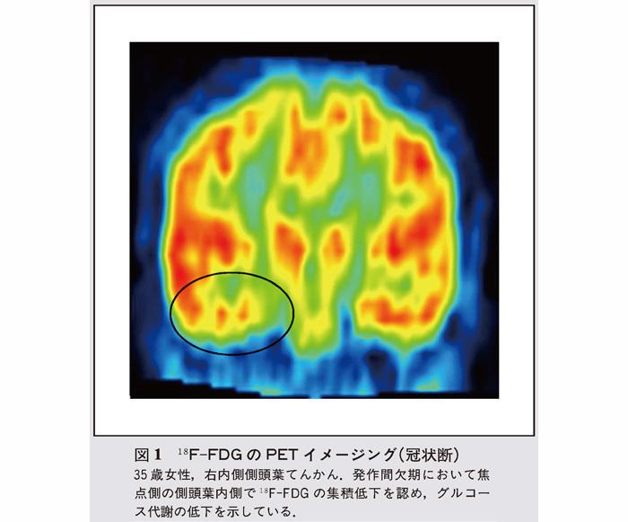 葉 側 てんかん 頭 側頭葉てんかんに対する海馬扁桃体摘出術